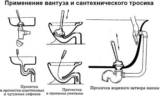 Как прочистить унитаз в домашних условиях вантузом